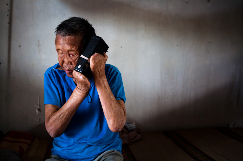 Bop a patient of Van Mon leprosy village listens to the news on his broken radio. - Thai Binh, Vietnam - SEND ME - Donor Awareness