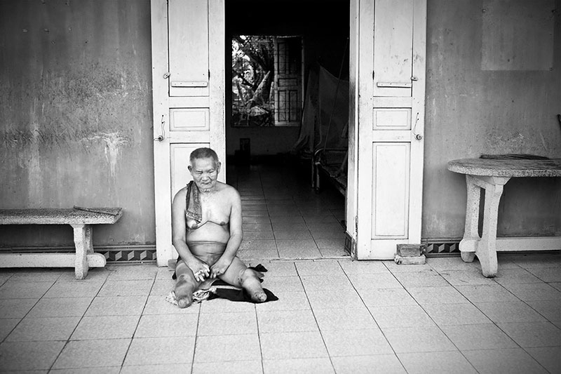 Phat sits in front of his living quarters at the Van Mon Leprosy Village. Phat, like many of the residents of Van Mon, has lived here most of his life. Living a whole life in these conditions with little or no family support, leaves some of the residents depressed at times. This is what is wrong with Phat, according to one of his government caretakers.